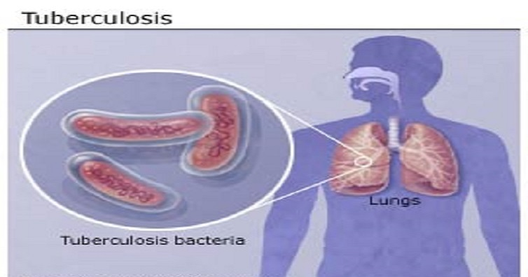 tuberculosis tb is a bacterial infection Tuberculosis, a potential killer, is a bacterial infection that mainly strikes the lungs find out how people with a weakened immune system run a greater risk of getting tb find out how people with a weakened immune system run a greater risk of getting tb.