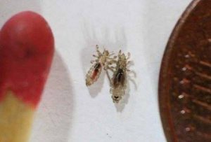 cheap-way-get-rid-head-lice-doctors-wont-tell-358x242